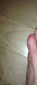 My swollen left toe.